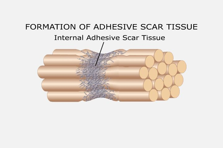scar tissue Hardened scars form for a variety of reasons surgery, improper stitches, vigorous activity with open wounds, and a.